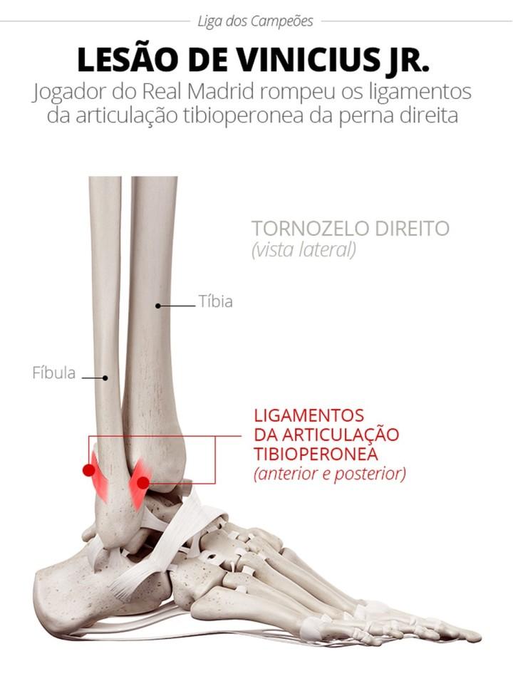 info-lesao-tornozelo-direito-vinicius-jr4